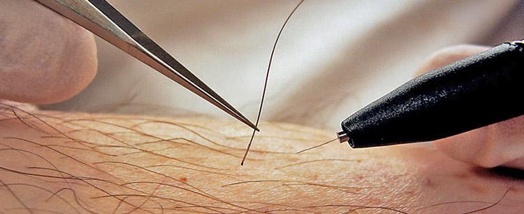 Игольчатая электроэпиляция током - описание, отзывы и противопоказания