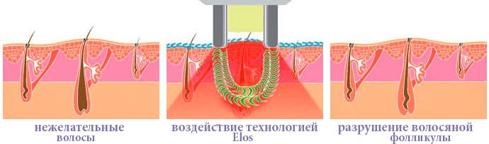 Как работает элос эпилятор - схема эпиляции током