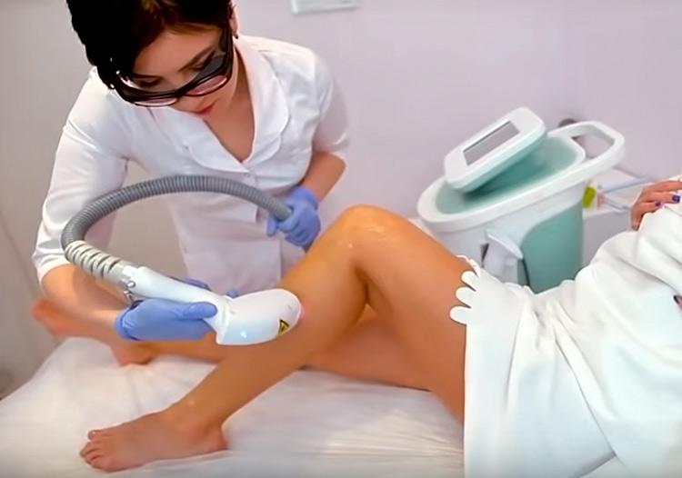 Можно ли делать лазерную эпиляцию при беременности?