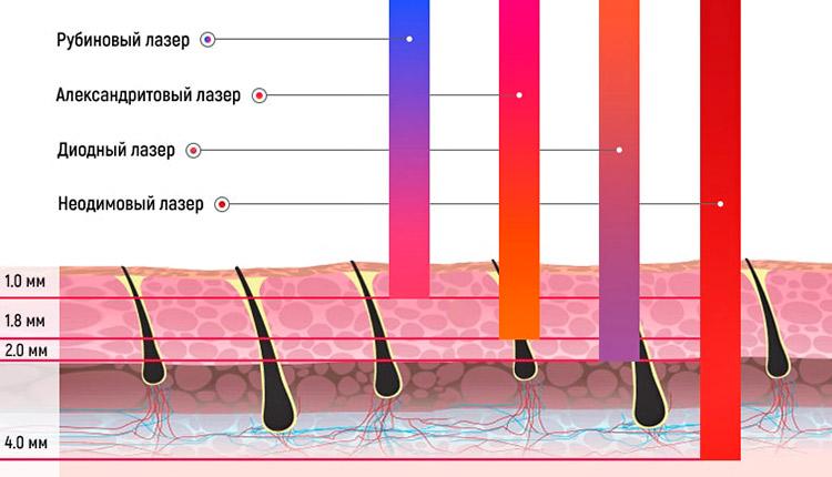 Эпиляция лазером - сравнение методов и силы воздействия лазера