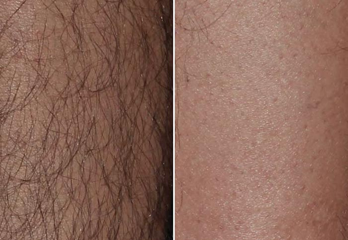 Удаление волос спреем у мужчин