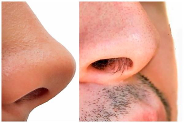 Удаление волос из носа - фото до и после
